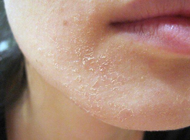 Почему при беременности сухая кожа